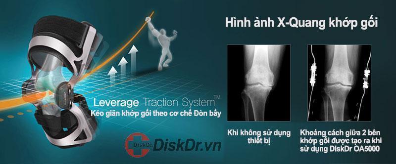 Nguyên lý kéo giãn khớp gối DiskDr OA5000