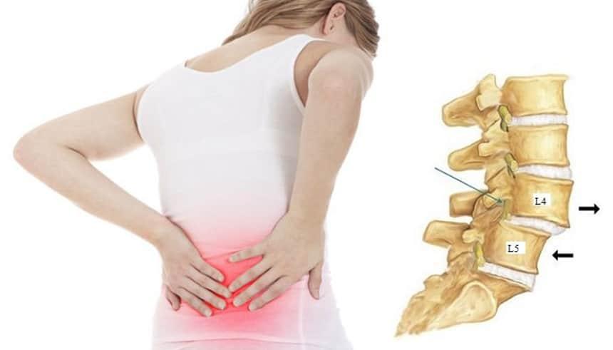 Đai lưng Disk Dr mang lại hiệu quả lớn trong điều trị trượt đốt sống
