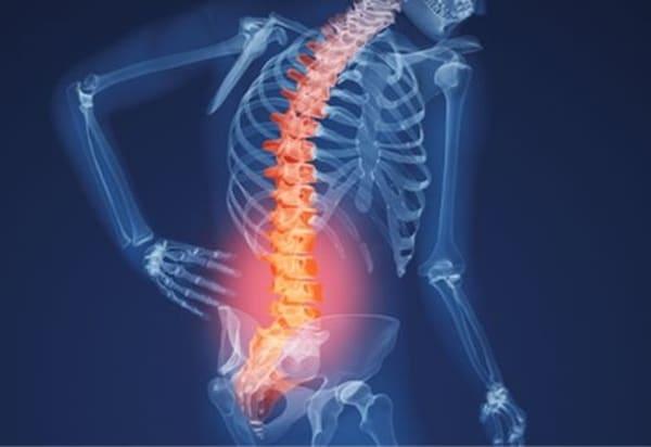 Bệnh đau lưng mãn tính do viêm