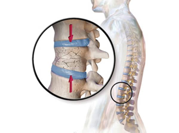 loãng xương là nguyên nhân gây đau lưng