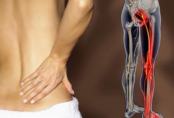 Biểu hiện của thoát vị đĩa đệm đau dây thần kinh toạ