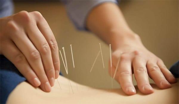Châm cứu mang đến hiệu quả cao trong việc làm giảm các cơn đau do thoát vị đĩa đệm