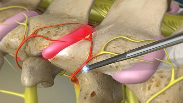 Phương pháp laser trong điều trị thoát vị đĩa đệm