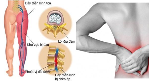 Công dụng khi chữa thoát vị đĩa đệm bằng phương pháp bấm huyệt