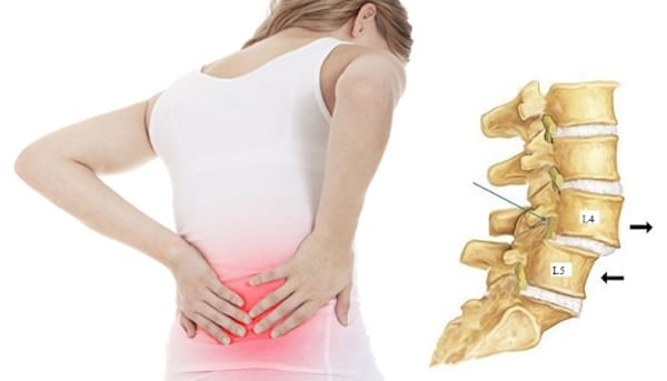 Đai kéo giãn cột sống thắt lưng điều trị đau lưng