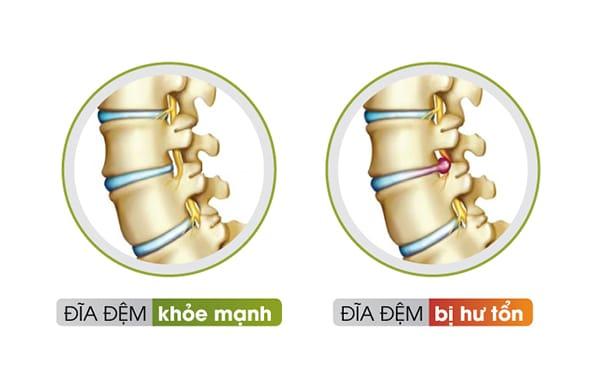 Đĩa đệm bị hư tổn sẽ gây chèn ép đến các rễ thần kinh xung quanh