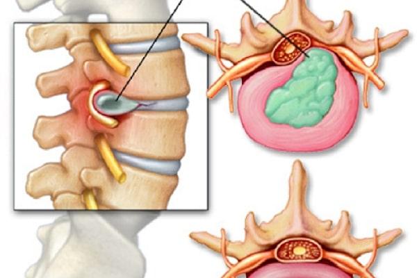 Đối tượng nên điều trị thoát vị đĩa đệm bằng phương pháp bấm huyệt