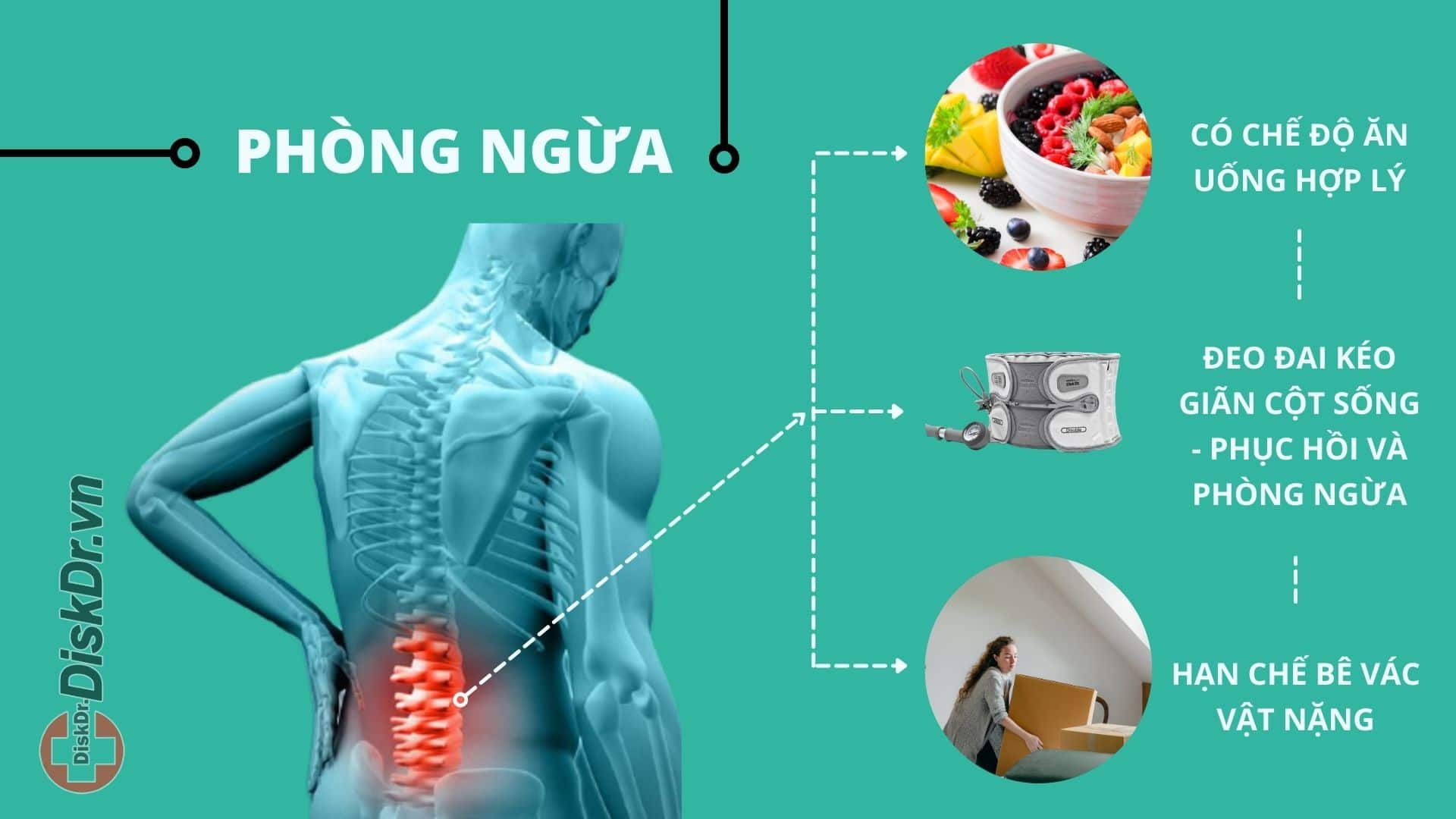 Cách phòng bệnh thoát vị đĩa đệm cột sống thắt lưng