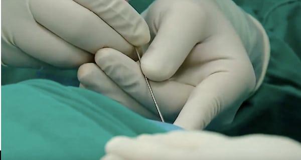 Phương pháp tiêm ozone điều trị thoát vị đĩa đệm