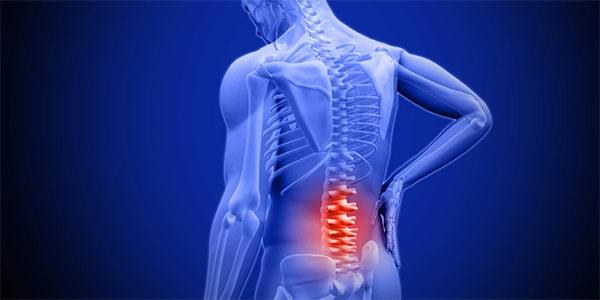 Đau lưng là triệu chứng điển hình nhất của thoát vị đĩa đệm