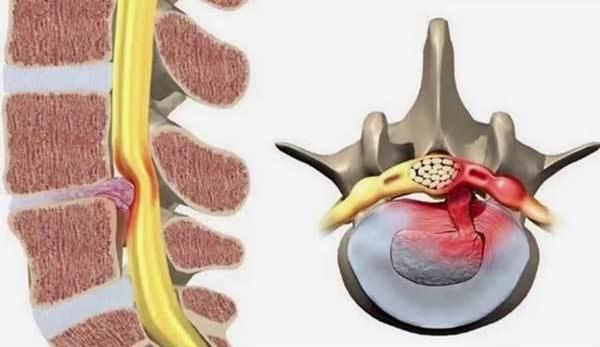 Thoát vị đĩa đệm không thể chữa khỏi hoàn toàn mà chỉ phục hồi tối đa nhất là 90%