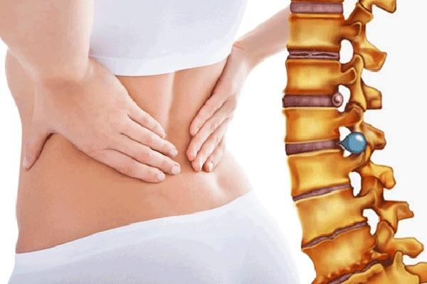 Bệnh thoát vị đĩa đệm gây ảnh hưởng đến sức khỏe