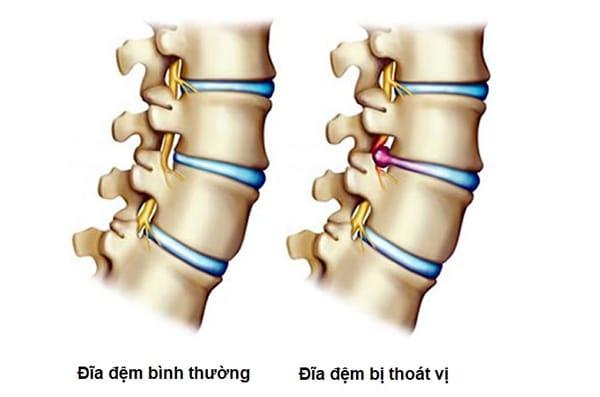 Bệnh thoát vị đĩa đệm thắt lưng