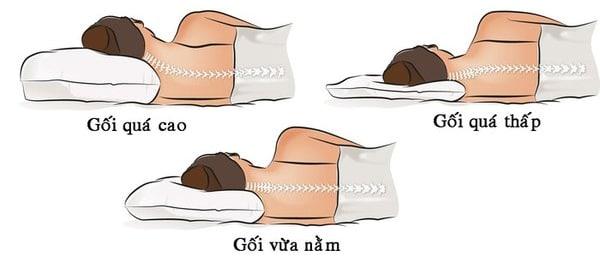 Chọn gối đầu phù hợp hạn chế cong vẹo cột sống