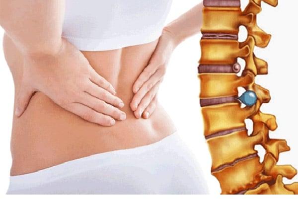 Bệnh thoát vị đĩa đệm gây đau lưng