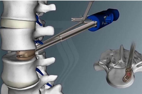 Chỉ thực hiện phẫu thuật chữa thoát vị đĩa đệm khi có chỉ định từ bác sĩ chuyên khoa