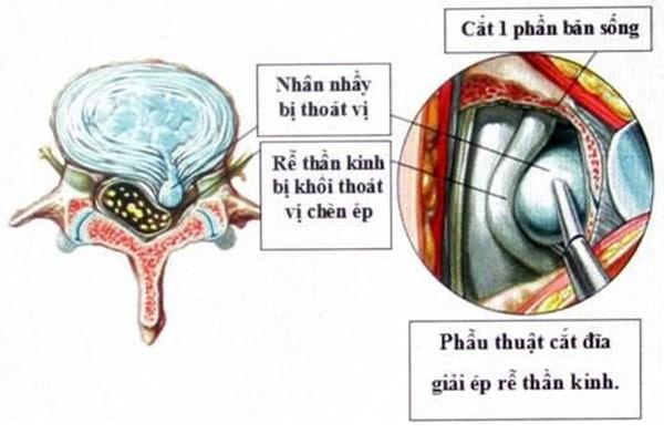 Phẫu thuật lấy khối thoát vị đĩa đệm