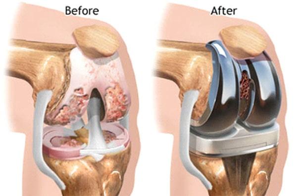 Phẫu thuật thay khớp gối toàn phần.