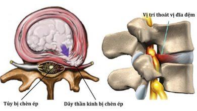 Khối thoát vị gây chèn ép lên tủy hoặc dây thần kinh