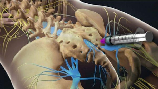 Thuốc tiêm ngoài màng cứng điều trị thoát vị đĩa đệm
