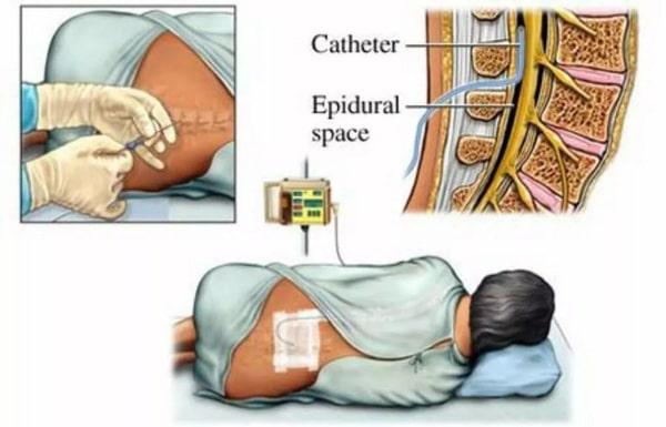 Tiêm ngoài màng cứng điều trị thoát vị đĩa đệm