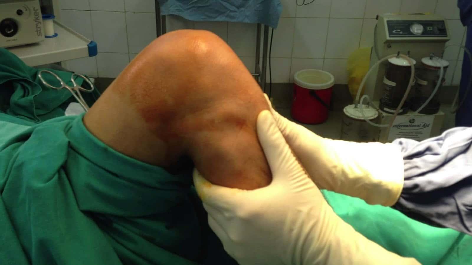 Đứt dây chằng cần có phương pháp điều trị phù hợp theo từng giai đoạn
