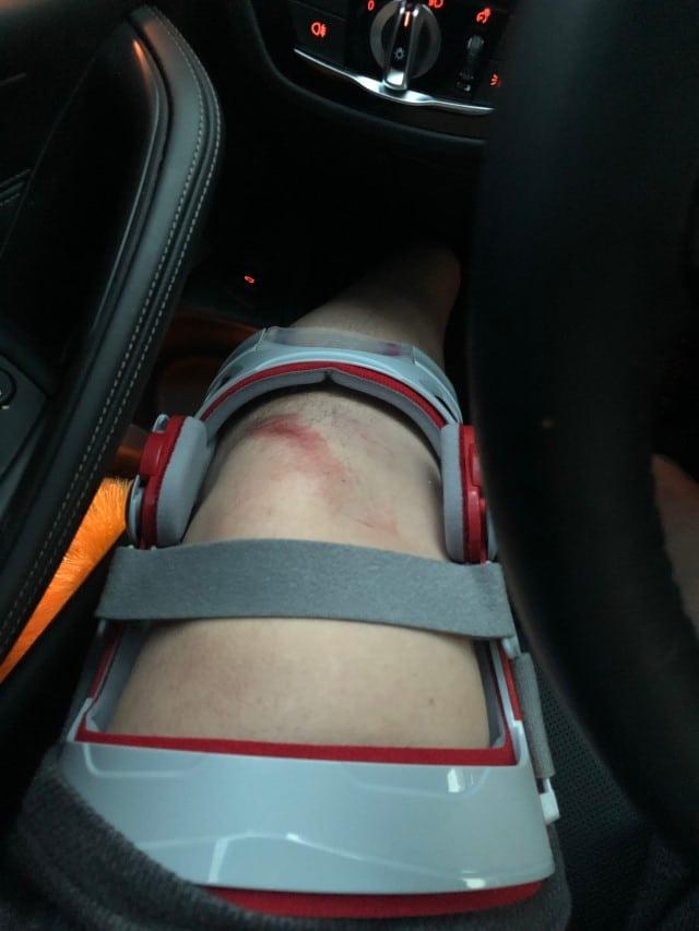 Sử dụng đai đeo khớp gối hỗ trợ phục hồi sau phẫu thuật