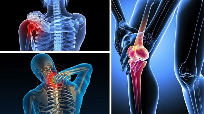 Tổng hợp các bệnh xương khớp thường gặp với DiskDr