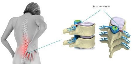 Các dấu hiệu thoát vị đĩa đệm cột sống thắt lưng