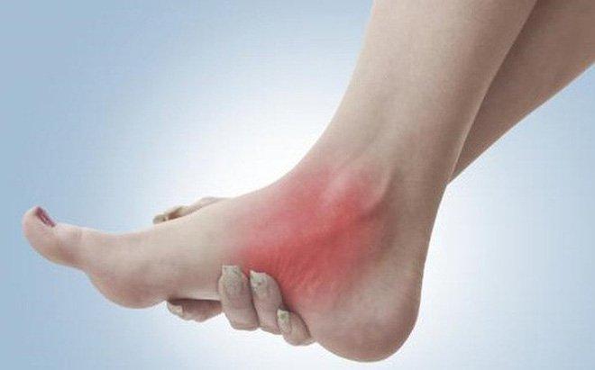 Bong gân cổ chân là chấn thương thường gặp