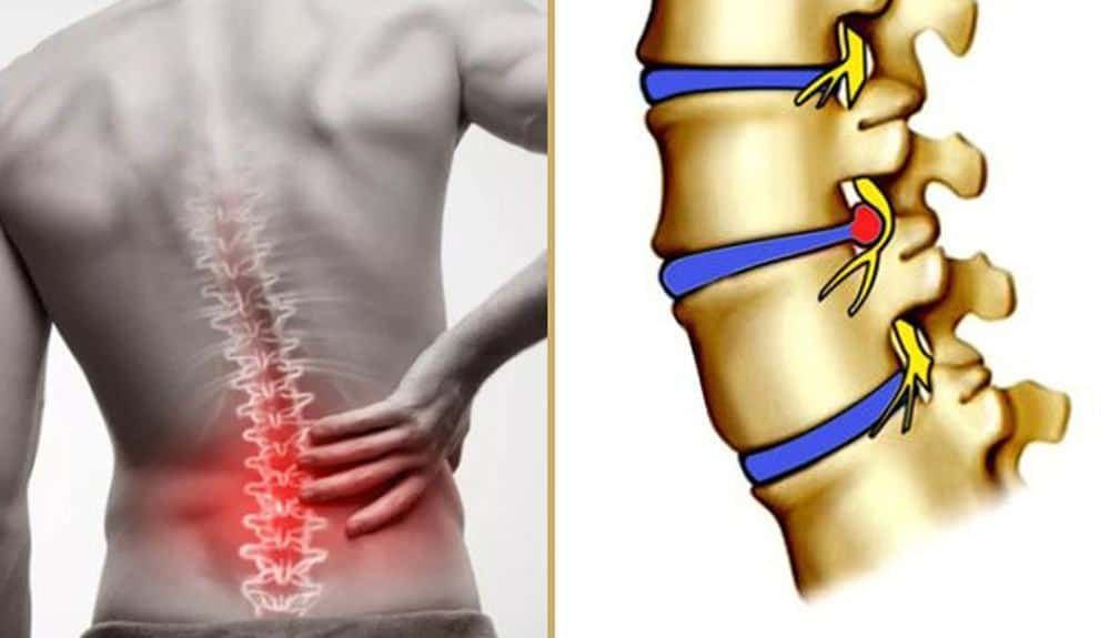 Đai lưng Disk Dr giúp điều trị hiệu quả thoát vị đĩa đệm