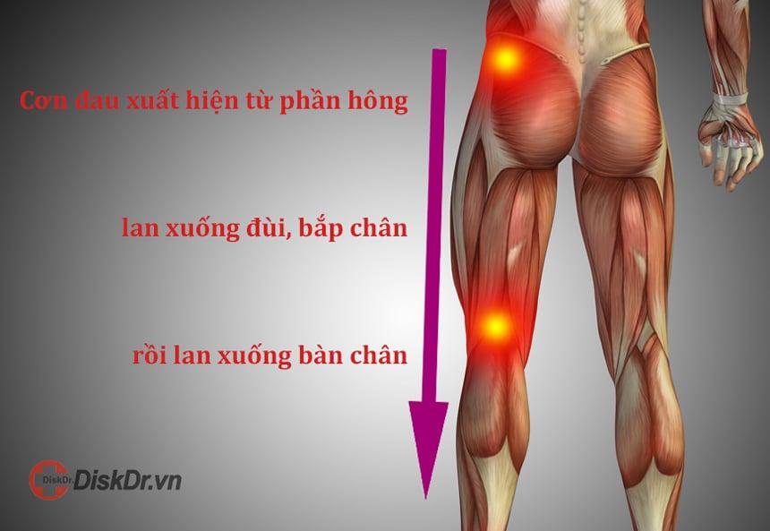 Cơn đau chạy dọc theo đường đi của dây thần kinh tọa