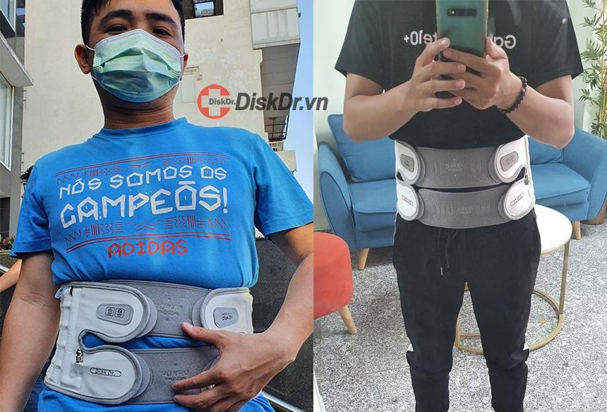 Sử dụng đai lưng Hàn Quốc giúp điều trị đau thần kinh tọa hiệu quả