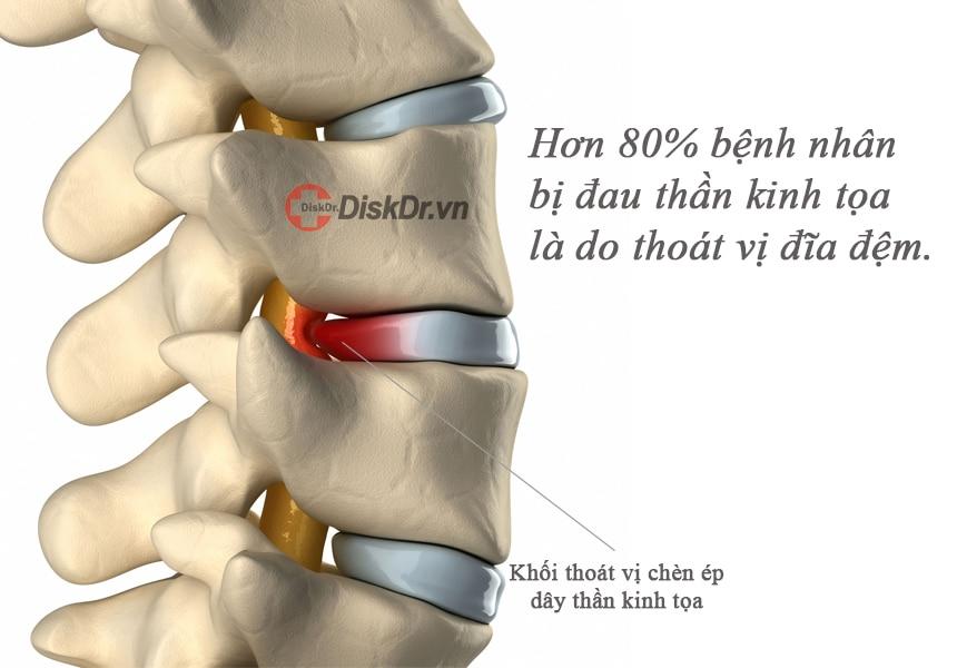 Thoát vị đĩa đệm là nguyên nhân chính gây đau thần kinh tọa