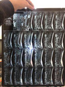 Hình ảnh phim thoát vị đĩa đệm của Brian Dinh
