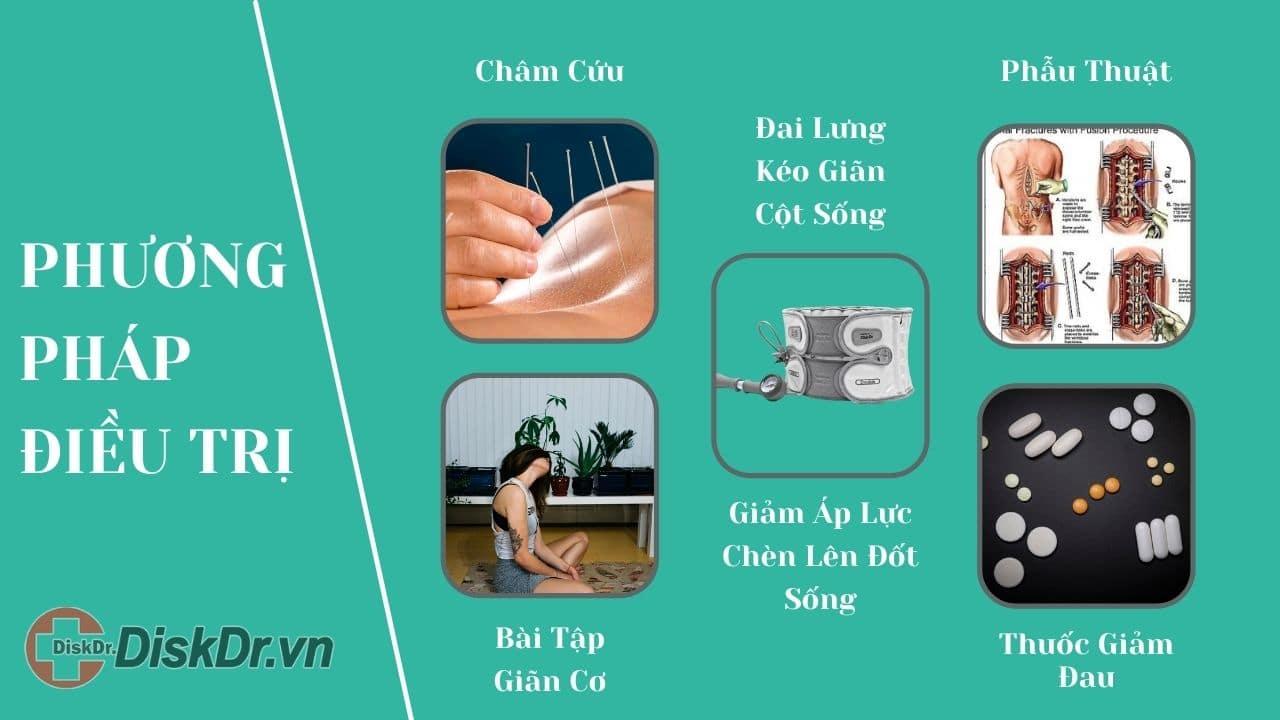Phương pháp điều trị thoái hóa cột sống, gai cột sống, thoát vị đĩa đệm