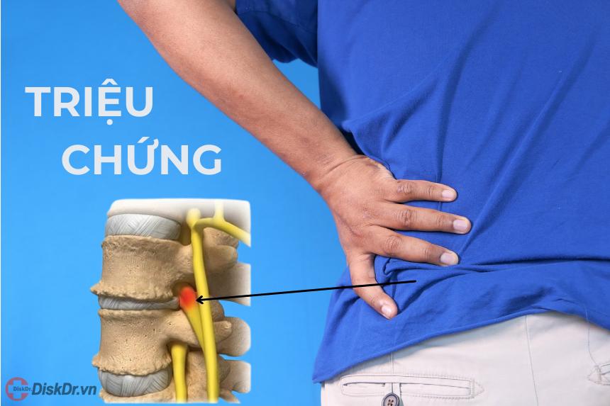 Triệu chứng thoái hóa cột sống thắt lưng